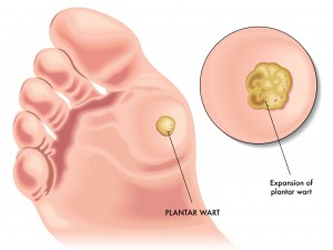 Wart Removal Treatments
