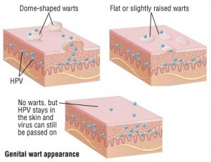 Treatment For Genital Warts