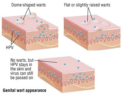 how to identify different types of warts