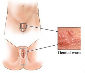topical treatments for genital warts