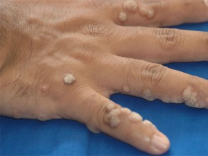 The Most Common Types of Warts