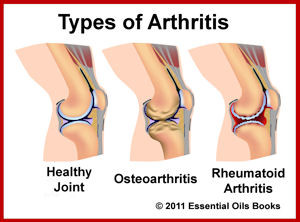 H-Arthritis Formula Review