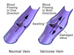 H-Varicose Veins Formula