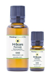 H-Scars Formula Review
